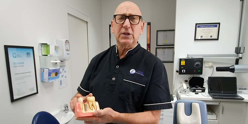 Dr Finkelstein showing Dental implants