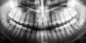 X-ray of the jaw showing teeth