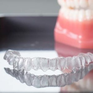 A picture of an Invisalign clear retainer
