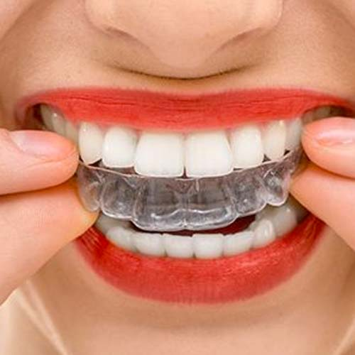 Invisalign Clear Retainer