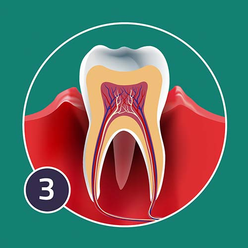 A diagram of aggressive periodontis
