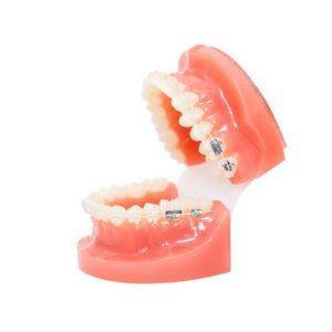 A model of ceramic braces
