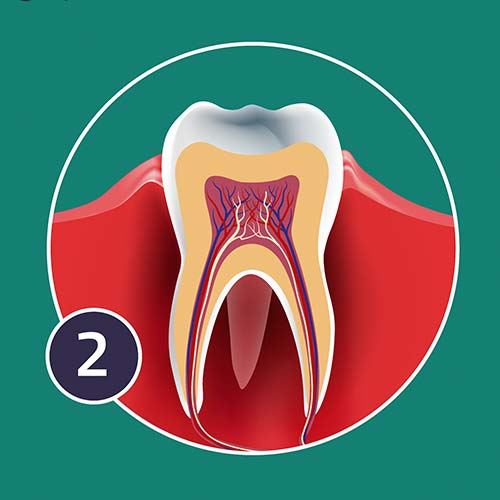 A diagram showing the impact of chronic periodontis