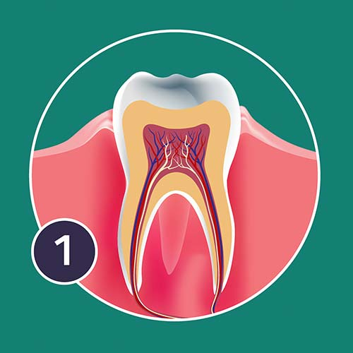 A diagram of gingivitis impacting tooth health