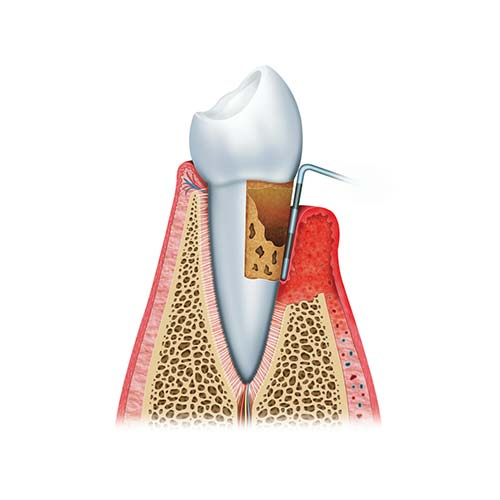 A diagram showing a tooth being inspected for gum disease