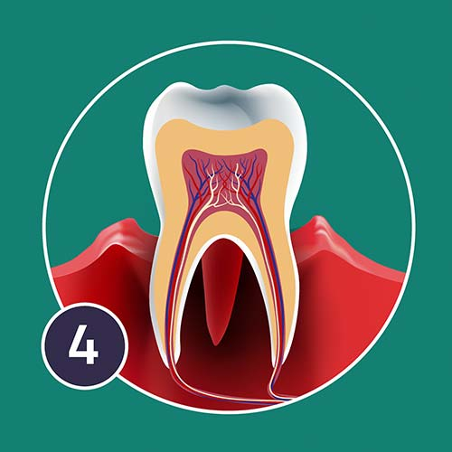 A diagram of Necrotising periodontis showing gum deterioration around the tooth