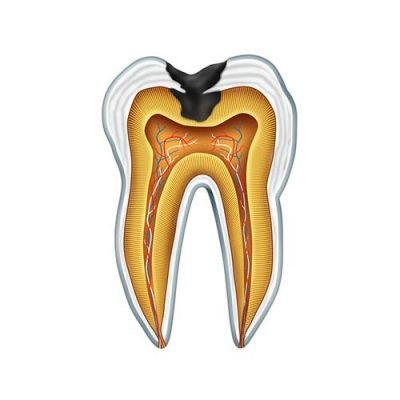 A diagram of a tooth cavity from side on